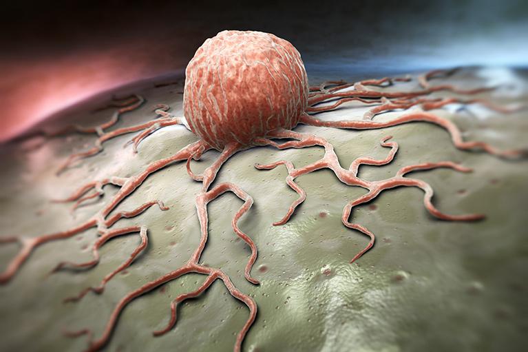 のどのポリープ、腫瘍